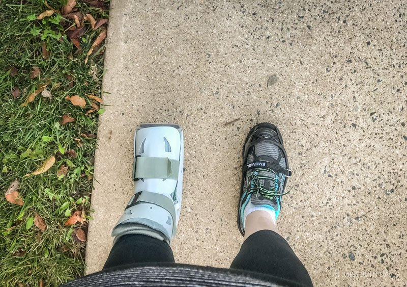 A Year Later, An Update on my Peroneal Tendon Surgery